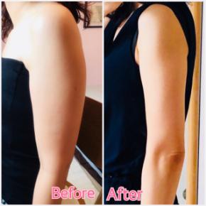 1ヶ月で二の腕−6cmダウン!
