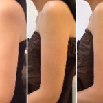 二の腕脂肪を5回で削ぎ落とす!!