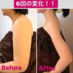 二の腕変化、−16キロ!!